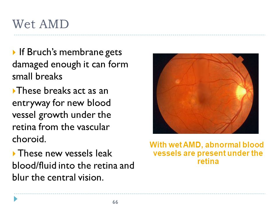 66 Wet AMD  If Bruch's membrane gets damaged enough it can form small breaks  These breaks act as an entryway for new blood vessel growth under the