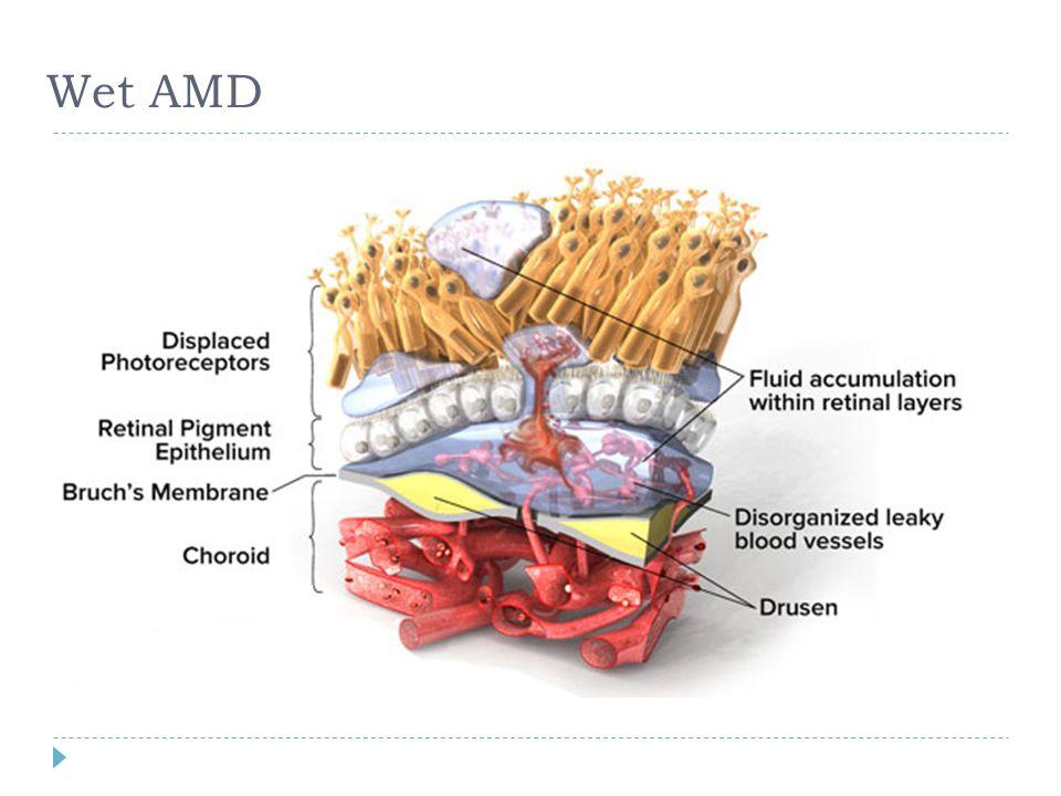 Wet AMD