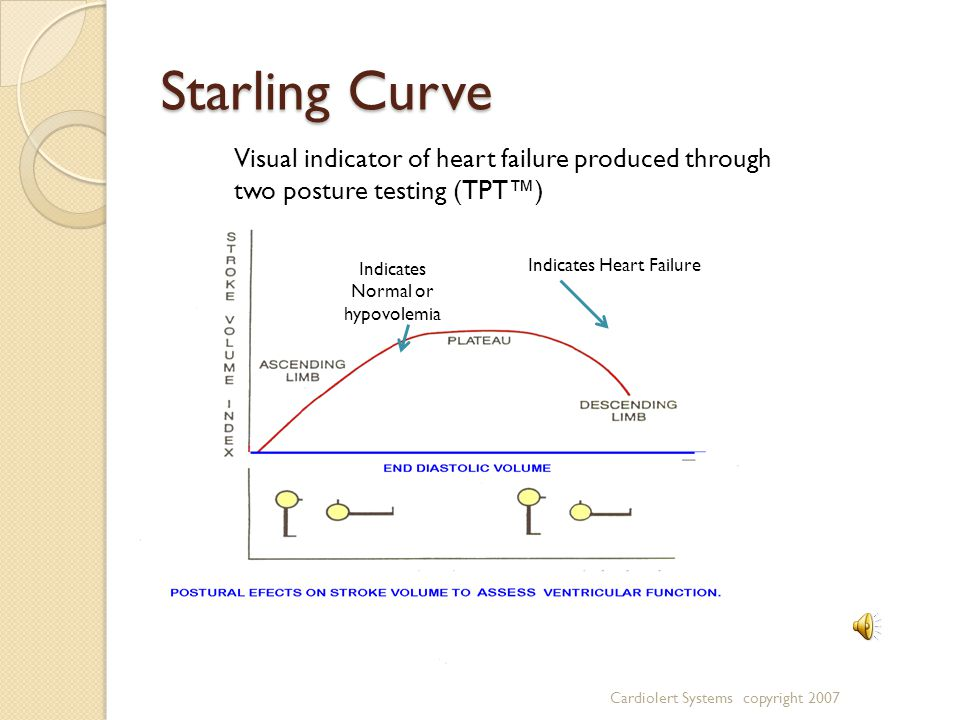 Starling Curve Indicates Heart Failure Indicates Normal or hypovolemia Visual indicator of heart failure produced through two posture testing (TPT™) Cardiolert Systems copyright 2007