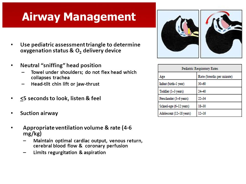 """Airway Management Use pediatric assessment triangle to determine oxygenation status & O 2 delivery device Neutral """"sniffing"""" head position – Towel und"""