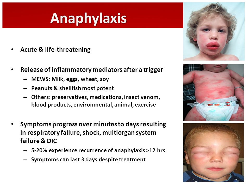 Anaphylaxis Acute & life-threatening Release of inflammatory mediators after a trigger – MEWS: Milk, eggs, wheat, soy – Peanuts & shellfish most poten