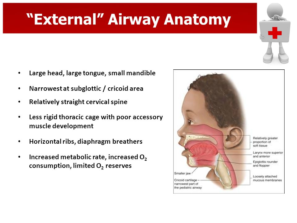 Smaller Internal Airway Epiglottis floppy, U shaped & anterior Larynx anterior Short floppy trachea Small soft airways in obligate nasal breathers – Nose = 50% airway resistance – Large tonsils, adenoids rapidly swell Pliable / floppy trachea collapses easily (Poiseuille's Law) – Adult: 1 mm edema = 81% size – Pedi: 1 mm edema = 44% size