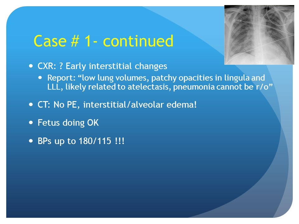"""CXR: ? Early interstitial changes Report: """"low lung volumes, patchy opacities in lingula and LLL, likely related to atelectasis, pneumonia cannot be r"""