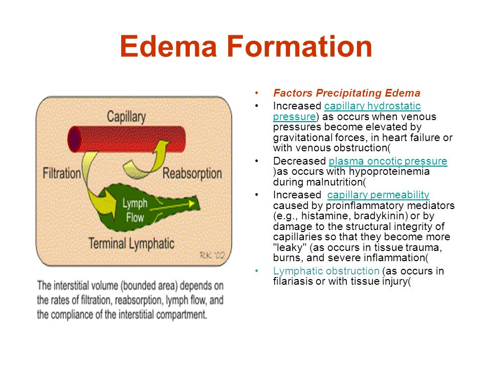 Causes of Edema: