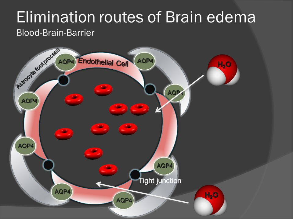 AQP4 Elimination routes of Brain edema Blood-Brain-Barrier H2OH2OH2OH2O Endothelial Cell Tight junction Astrocyte foot process H2OH2OH2OH2O AQP4 AQP4 AQP4 AQP4 AQP4 AQP4 AQP4