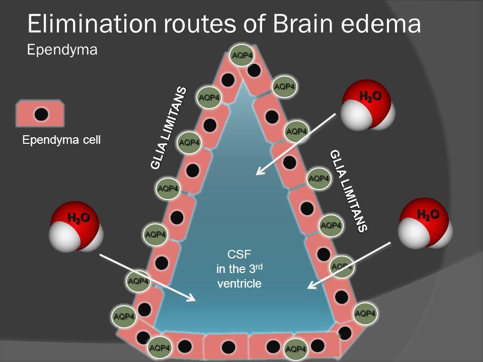 Elimination routes of Brain edema Ependyma CSF in the 3 rd ventricle AQP4 AQP4 AQP4 AQP4 AQP4 AQP4 AQP4 AQP4 AQP4 AQP4 AQP4 AQP4 AQP4 AQP4 AQP4 Ependyma cell H2OH2OH2OH2O H2OH2OH2OH2O H2OH2OH2OH2O GLIA LIMITANS