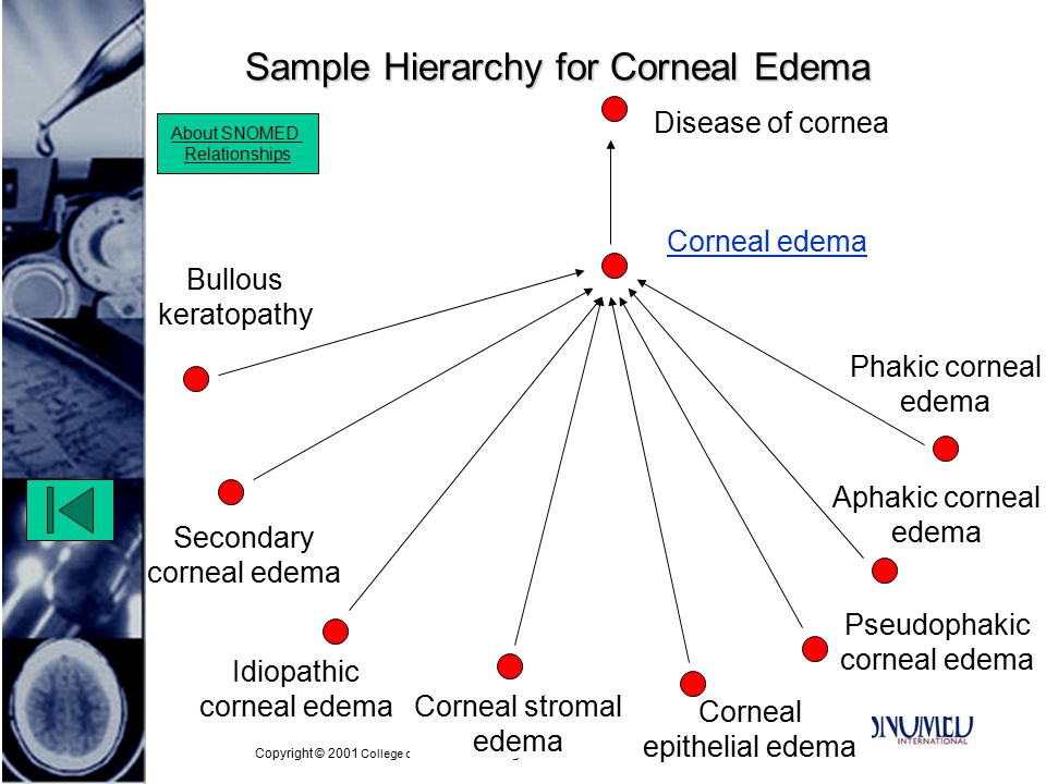 Copyright © 2001 College of American Pathologists Pseudophakic corneal edema Sample Hierarchy for Corneal Edema Idiopathic corneal edema Phakic corneal edema Bullous keratopathy Aphakic corneal edema About SNOMED Relationships Disease of cornea Corneal edema Corneal stromal edema Secondary corneal edema Corneal epithelial edema