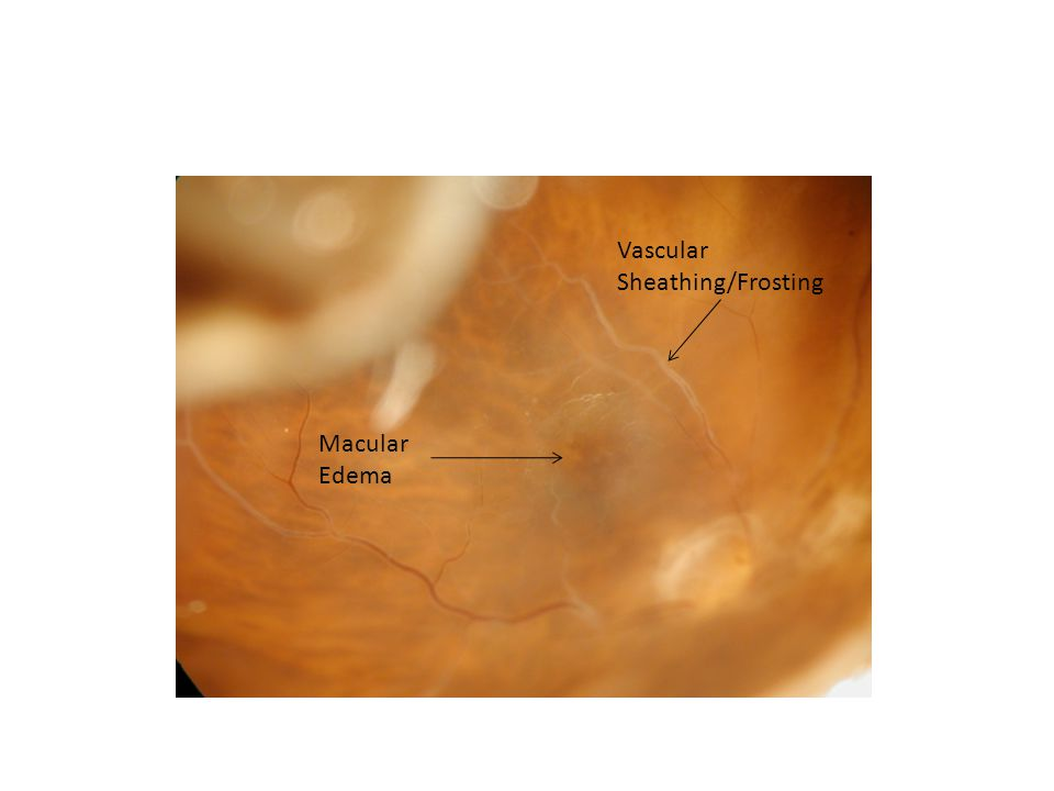 Discussion- Macular Edema Most commonly caused by retinal vascular disease from diabetes, hypertension and venous occlusive disease.