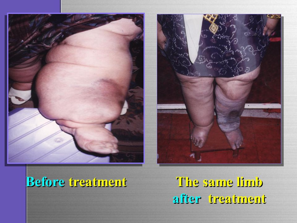 Before treatment The same limb after treatment