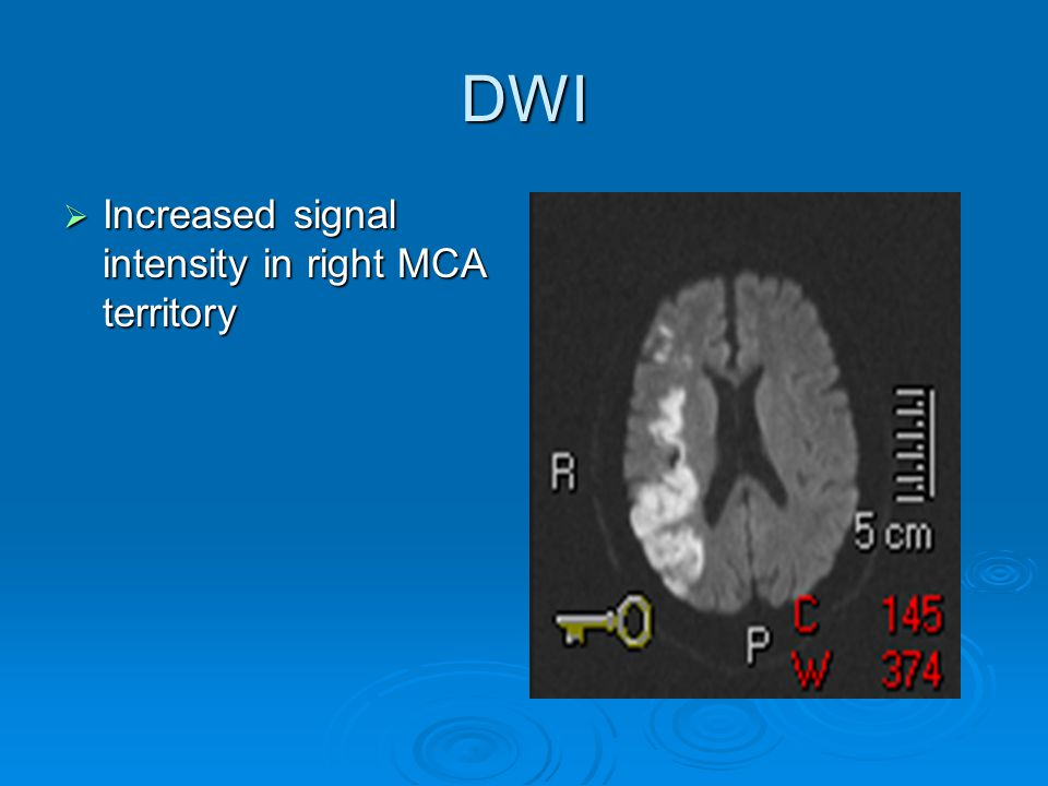 DWI  Increased signal intensity in right MCA territory