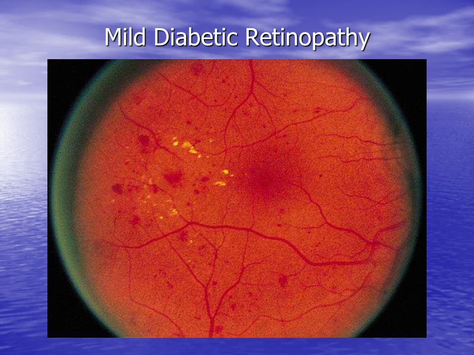 Mild Diabetic Retinopathy