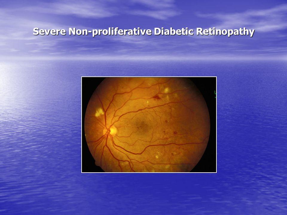 Severe Non-proliferative Diabetic Retinopathy