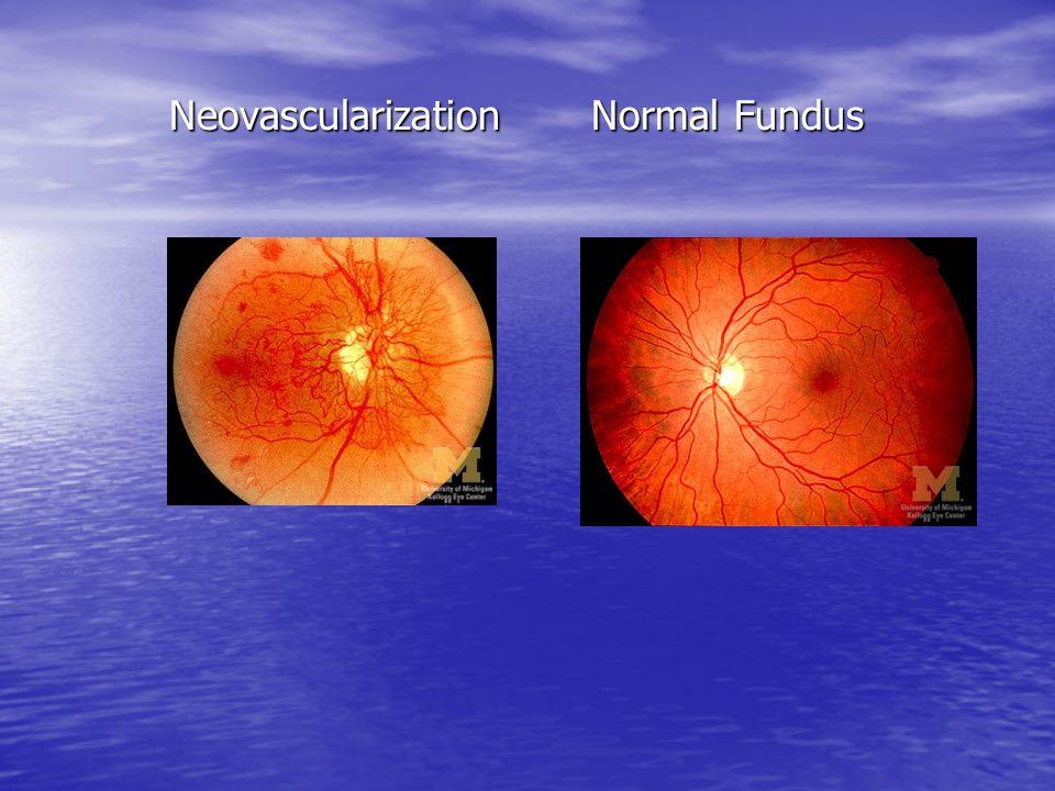 NeovascularizationNormal Fundus