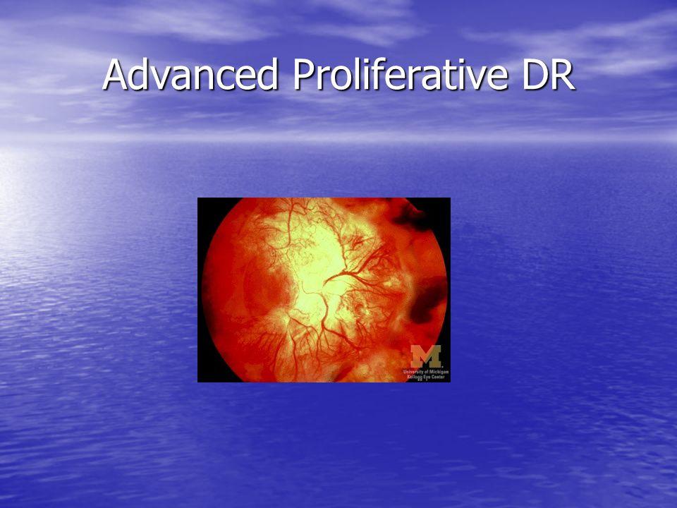 Advanced Proliferative DR