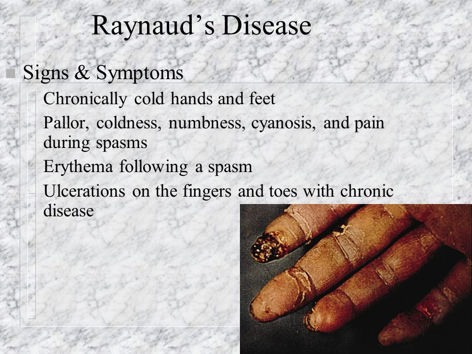 Raynaud's Disease n Signs & Symptoms – Chronically cold hands and feet – Pallor, coldness, numbness, cyanosis, and pain during spasms – Erythema following a spasm – Ulcerations on the fingers and toes with chronic disease