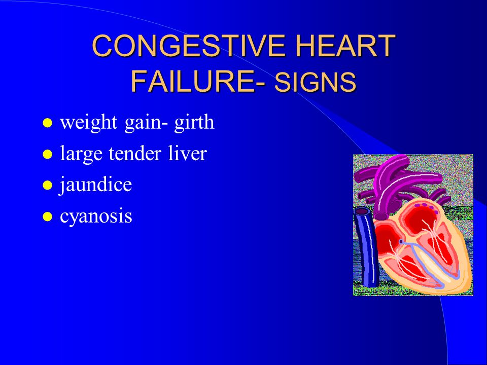 CONGESTIVE HEART FAILURE- SIGNS weight gain- girth large tender liver jaundice cyanosis