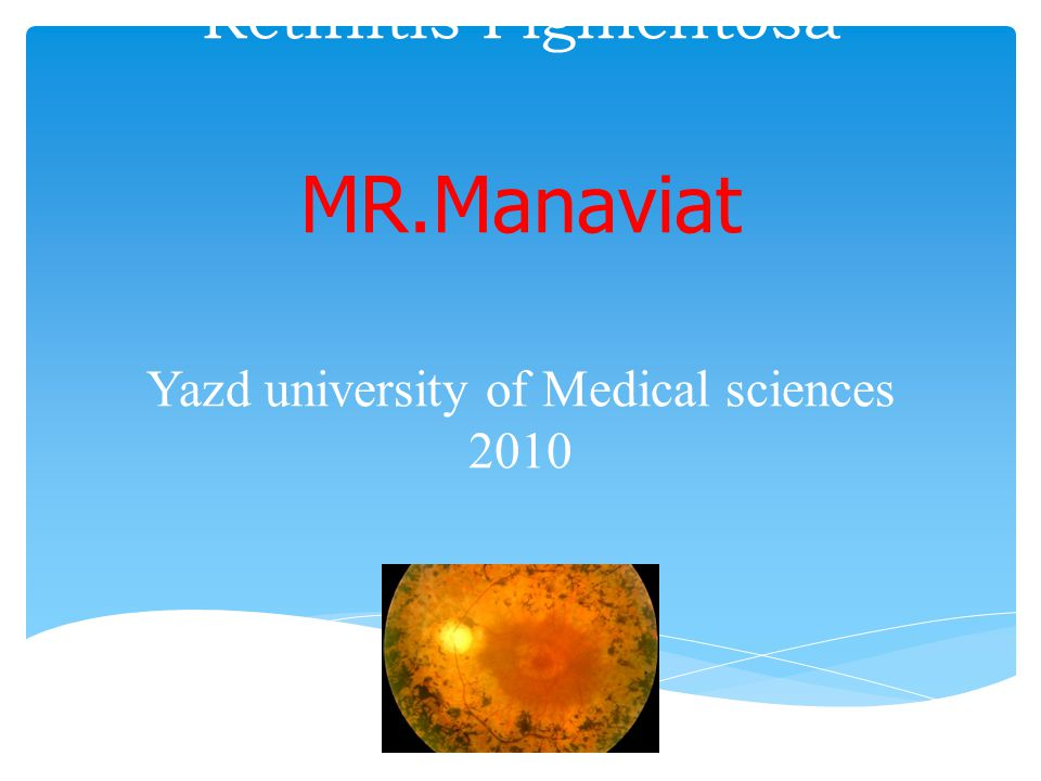Acquired causes of retinal degeneration  Previous Ophthalmic artery occlusion  Diffuse uveitis  Infections  Paraneoplastic syndromes  Drug toxicity