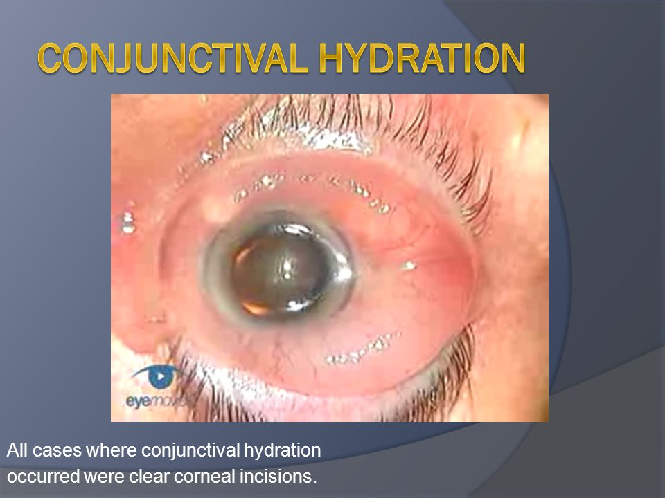All cases where conjunctival hydration occurred were clear corneal incisions.