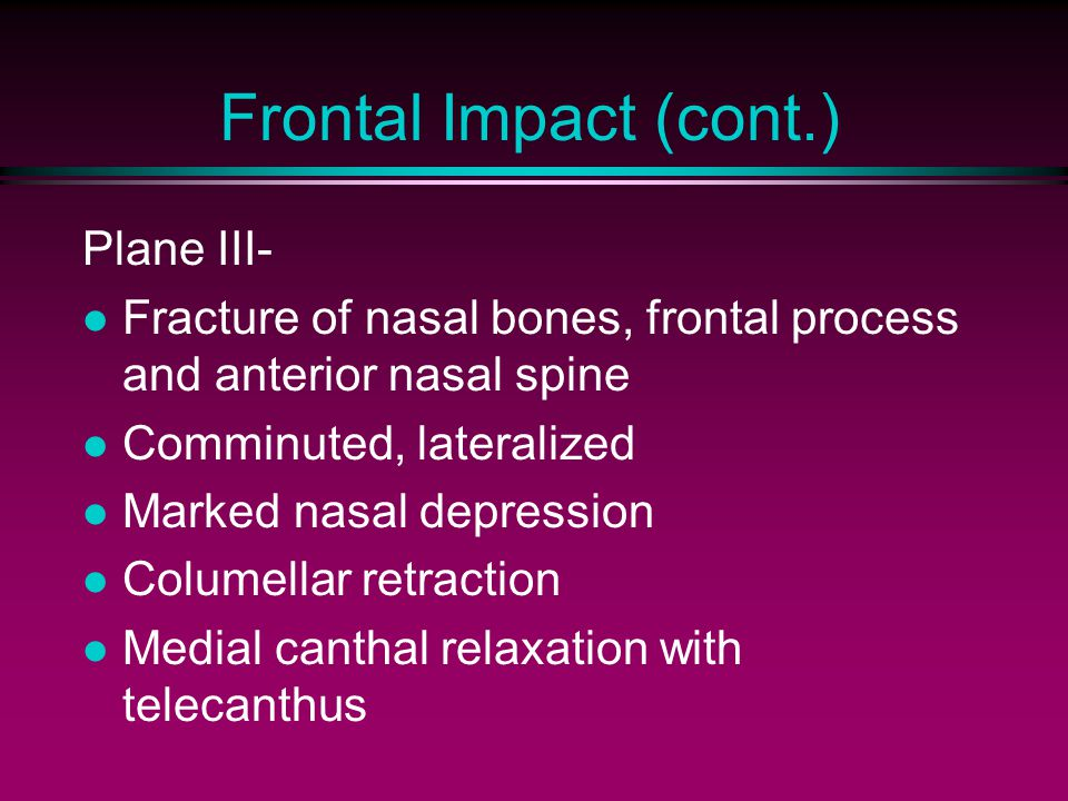Frontal Impact (cont.) Plane III- Fracture of nasal bones, frontal process and anterior nasal spine Comminuted, lateralized Marked nasal depression Co