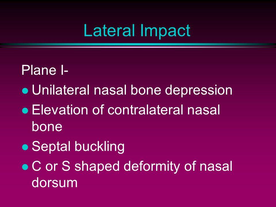 Lateral Impact Plane I- Unilateral nasal bone depression Elevation of contralateral nasal bone Septal buckling C or S shaped deformity of nasal dorsum
