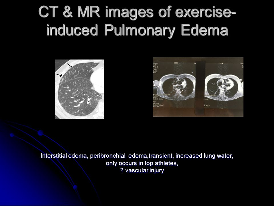 CT & MR images of exercise- induced Pulmonary Edema Interstitial edema, peribronchial edema,transient, increased lung water, only occurs in top athletes, .