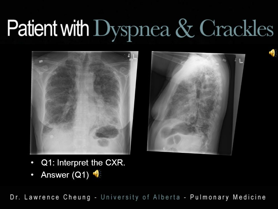 58 year old female increasing exertional dyspnea x 8 months.