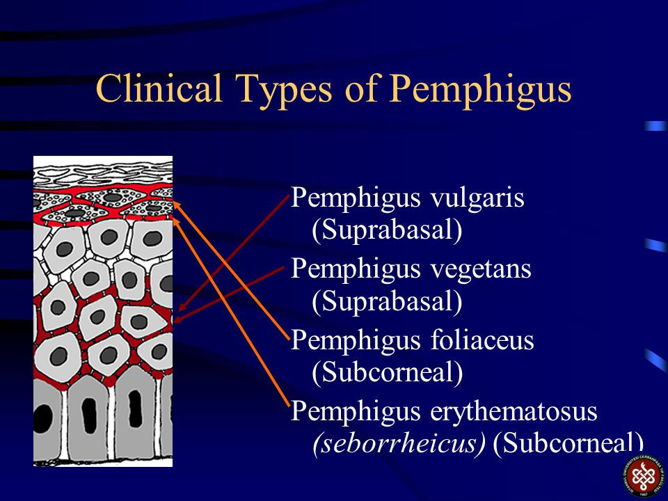 Pemphigoid Linear IgG is deposited on the junction between epidermis and dermis.