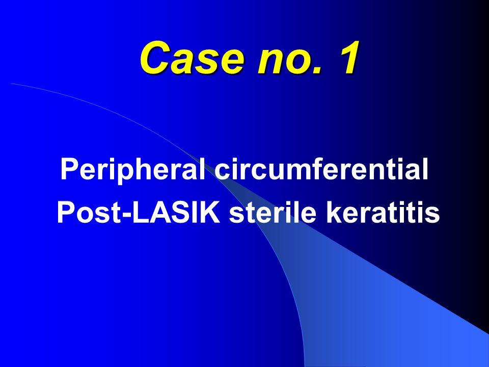 Case no. 1 Peripheral circumferential Post-LASIK sterile keratitis