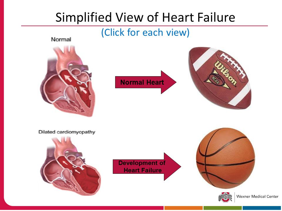 Normal Heart Development of Heart Failure Simplified View of Heart Failure (Click for each view)
