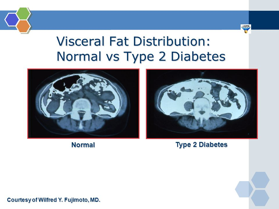 Normal Type 2 Diabetes Courtesy of Wilfred Y. Fujimoto, MD. Visceral Fat Distribution: Normal vs Type 2 Diabetes