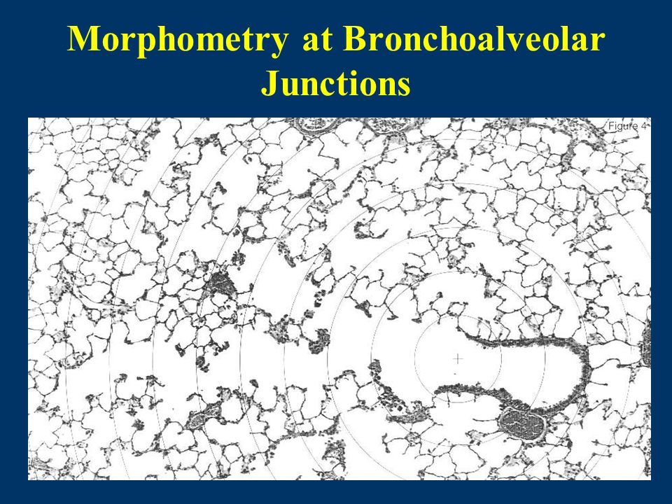 Morphometry at Bronchoalveolar Junctions