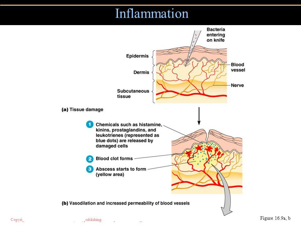 Copyright © 2004 Pearson Education, Inc., publishing as Benjamin Cummings Inflammation Figure 16.9a, b