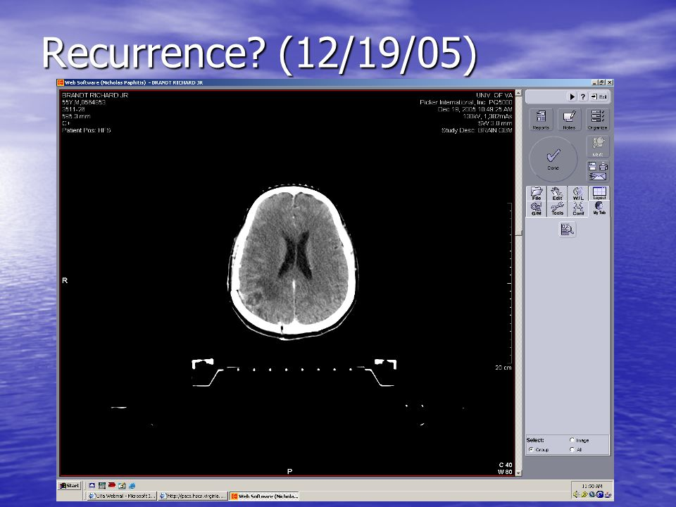 Recurrence? (12/19/05)