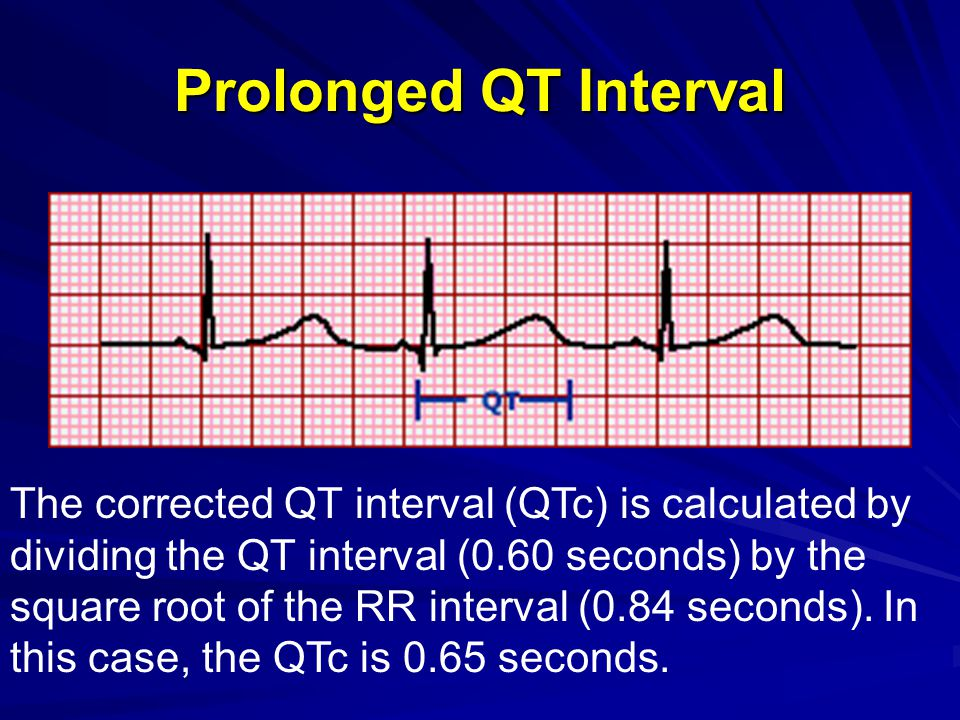 Torsades des Pointes The electrocardiographic rhythm strip shows torsades de pointes, a polymorphic ventricular tachycardia associated with QT prolongation.