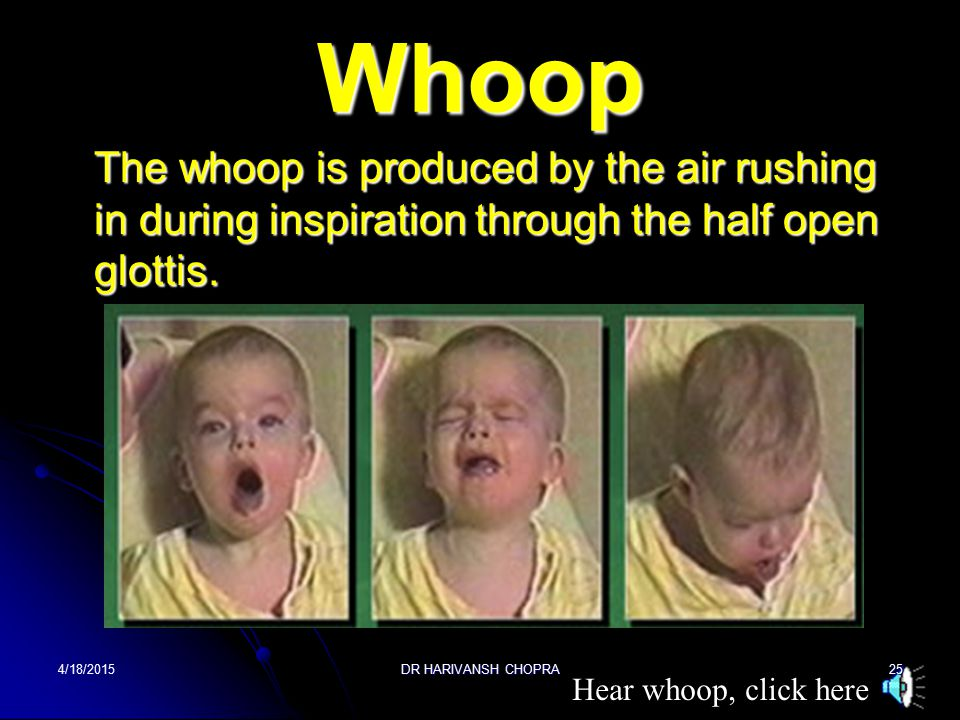 3.The bout of cough terminates with along drawn out inspiratory crowing sound or whoop.