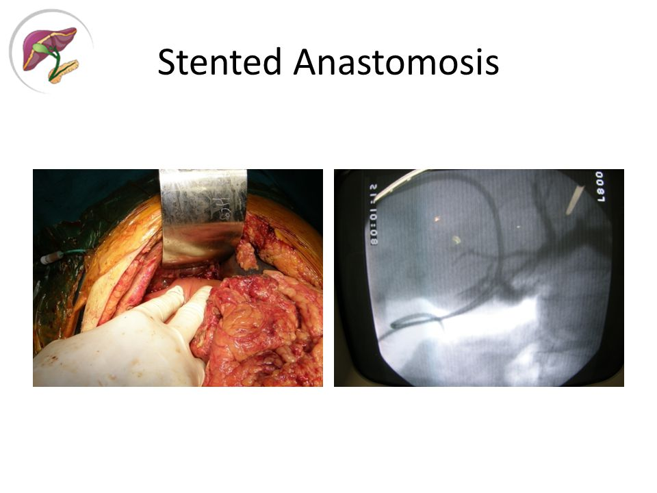 Stented Anastomosis