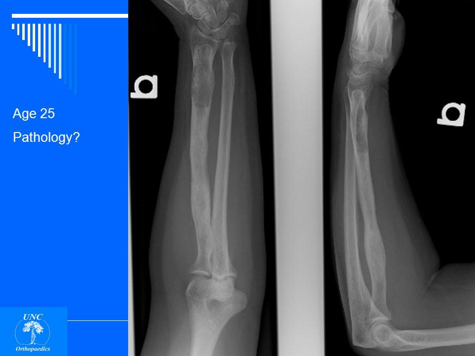 Age 50 Pathology punched out holes in bone Proximal humerus Multiple Myeloma