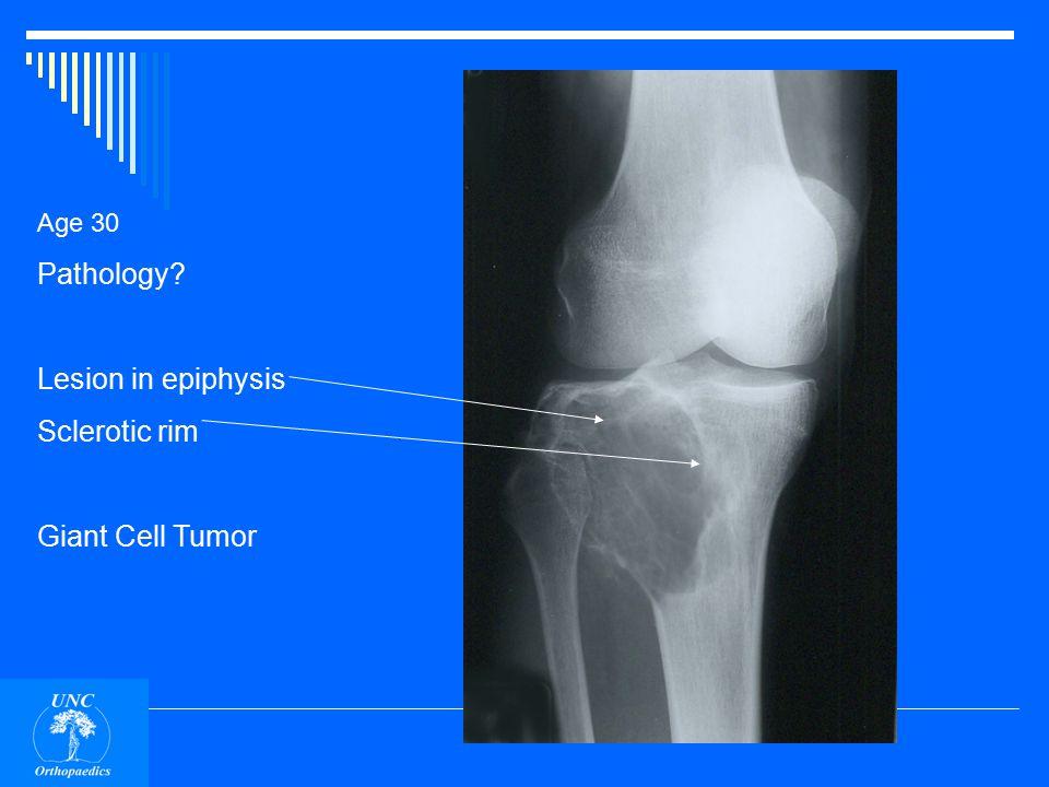 Age 30 Pathology epiphyseal Sclerotic rim