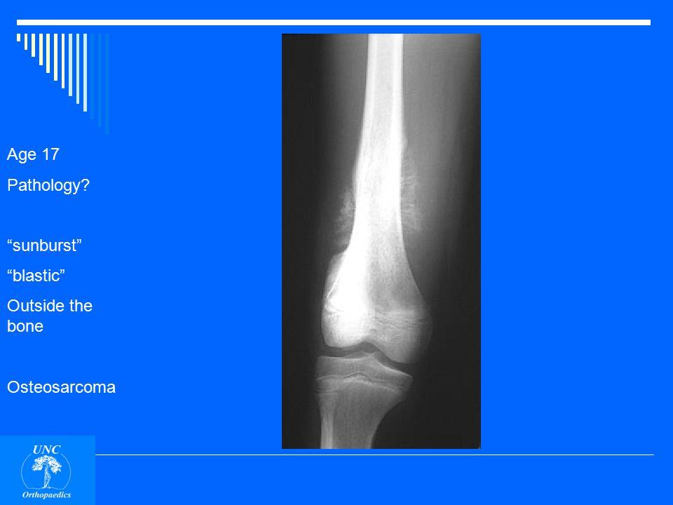 Age 17 Pathology sunburst blastic Outside the bone