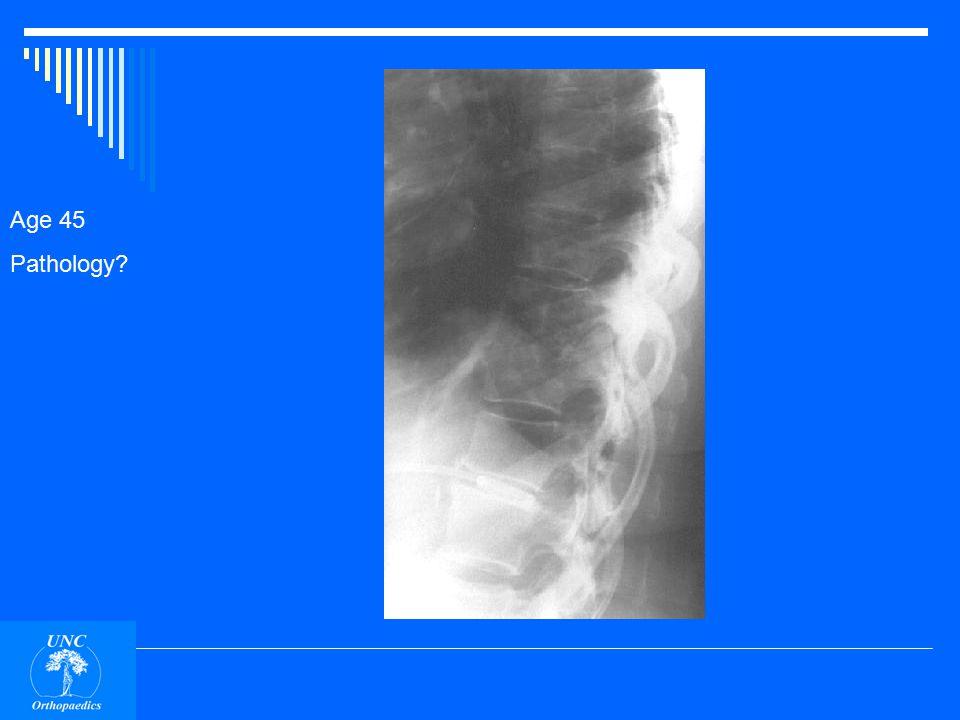 Age 17 Pathology sunburst blastic Outside the bone Osteosarcoma