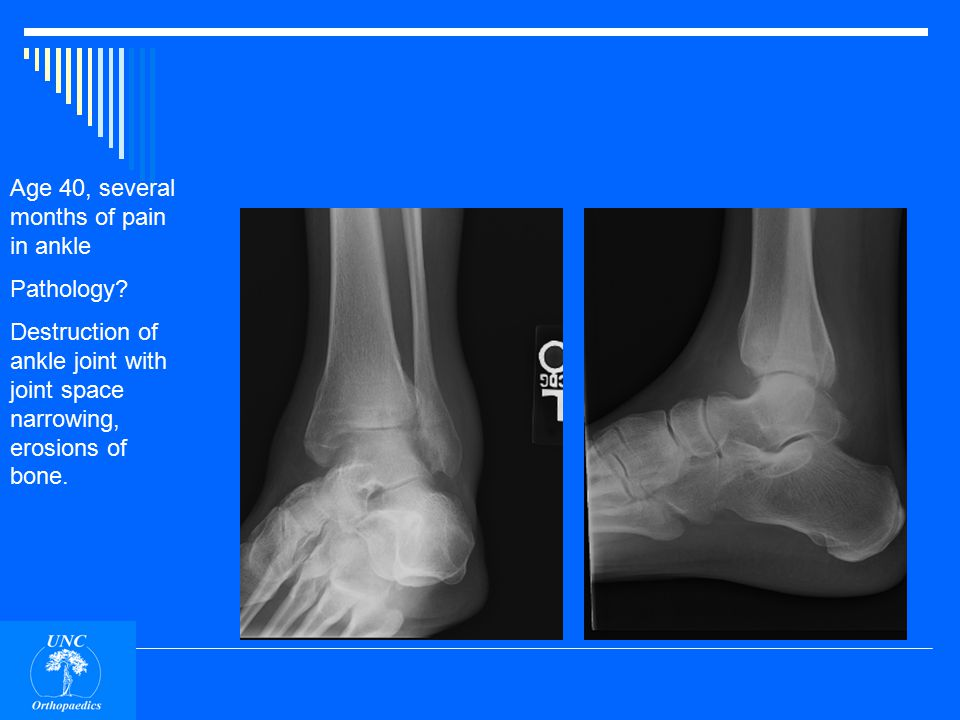 Age 40, several months of pain in ankle Pathology
