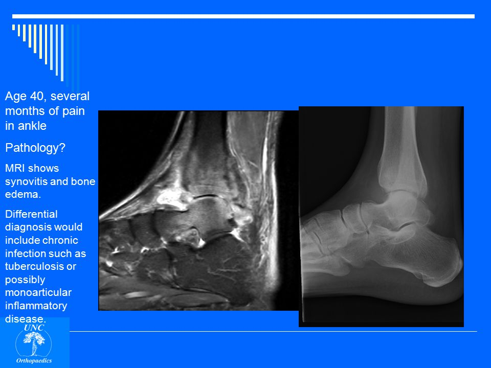 Age 40, several months of pain in ankle Pathology.