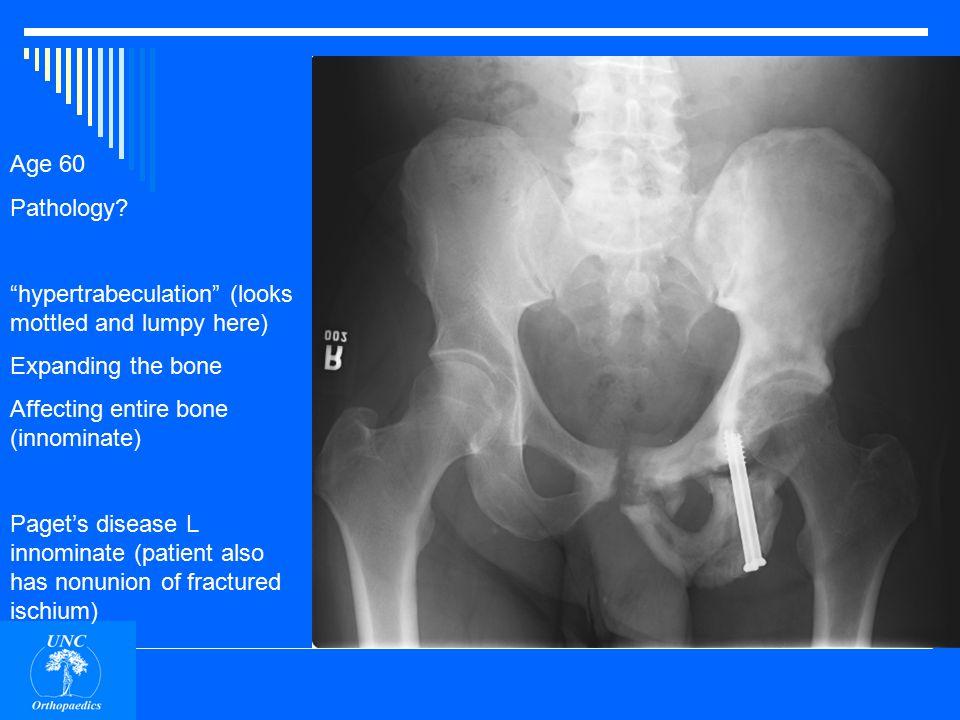 Age 60 Pathology hypertrabeculation Expanding the bone Affecting entire bone