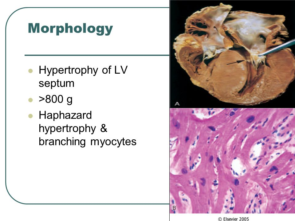 Morphology Hypertrophy of LV septum >800 g Haphazard hypertrophy & branching myocytes