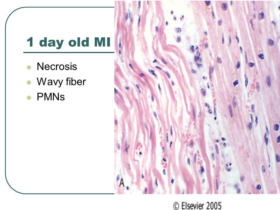 1 day old MI Necrosis Wavy fiber PMNs
