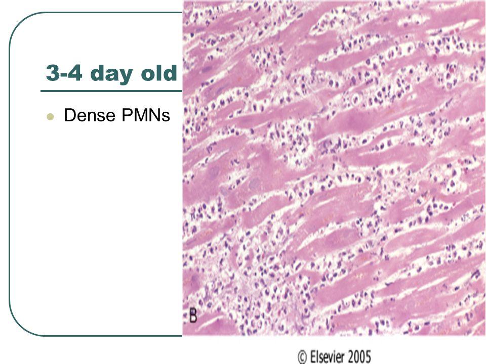 3-4 day old Dense PMNs