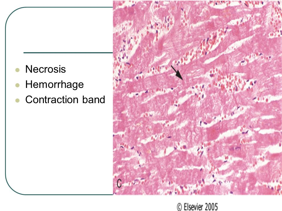 Necrosis Hemorrhage Contraction band