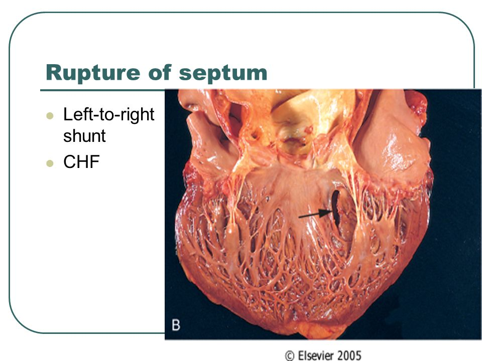 Rupture of septum Left-to-right shunt CHF
