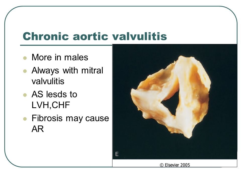 Chronic aortic valvulitis More in males Always with mitral valvulitis AS lesds to LVH,CHF Fibrosis may cause AR