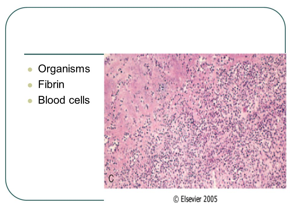 Organisms Fibrin Blood cells